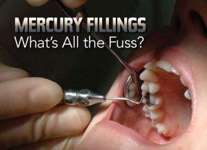 mercuryfillings